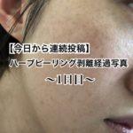 【今日から連続投稿】ハーブピーリング剥離経過写真~1日目~